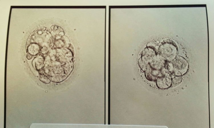 Embryo Transfer Day Is Here! - Risa Kerslake Writes